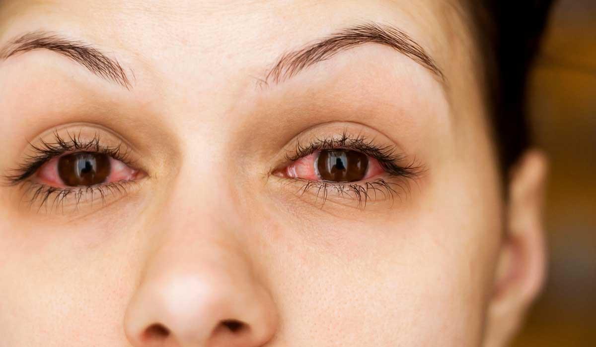 علاج التهاب العين