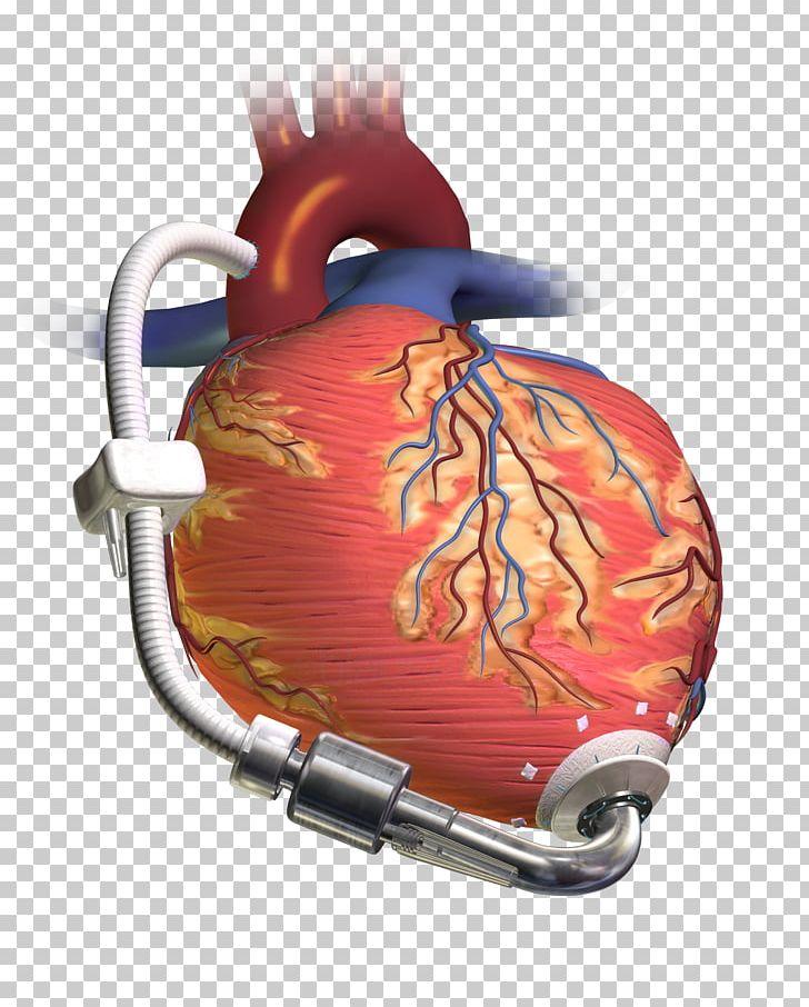 عملية القلب