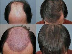 اسرع واسهل وصفات لتكثيف الشعر