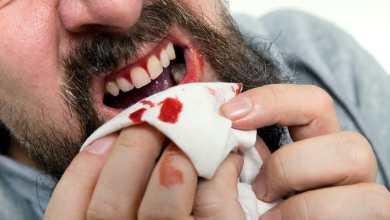 Photo of أسباب خروج الدم من الفم