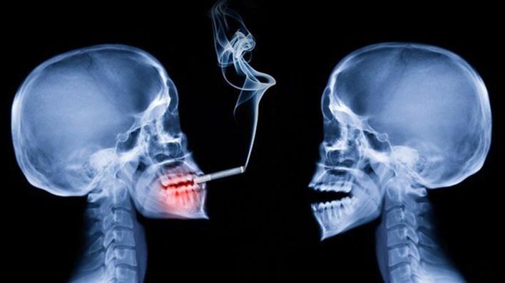 أضرار التدخين على الصحة