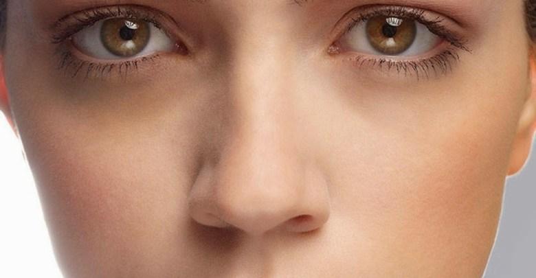 Photo of علاج الهالات السوداء حول العين