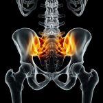 أعراض التهاب العمود الفقري