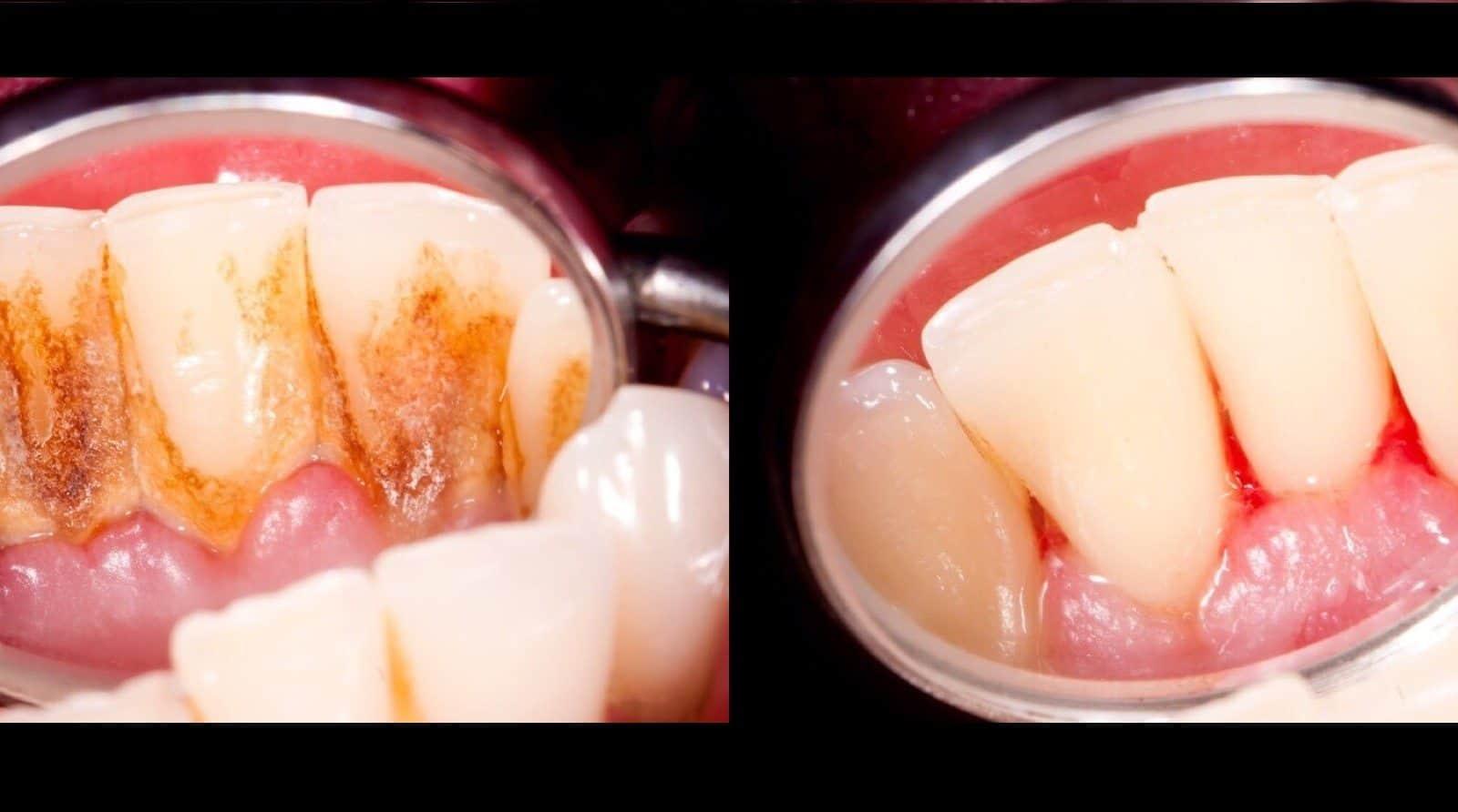 جير الاسنان اسبابه و طرق علاجه