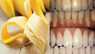 Photo of مين جربت قشر الموز لتبييض الأسنان