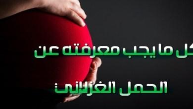 Photo of الحمل الغزلاني