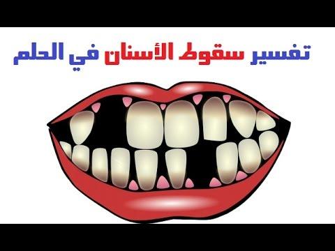 تفسير سقوط الأسنان في المنام
