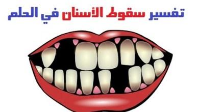 Photo of تفسير حلم سقوط السن في المنام