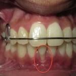 تراجع اللثة يؤدي الي انحسار وتراجع الاسنان