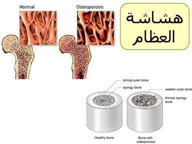 صورة هشاشة العظام