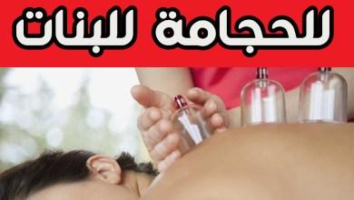 Photo of فوائد الحجامة للبنات