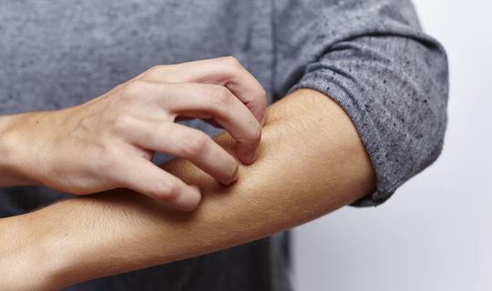 علاج الجرب بالثوم