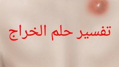 Photo of تفسير حلم الخراج في المنام