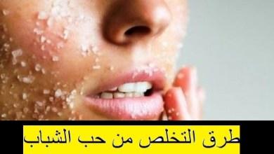 Photo of طرق التخلص من حب الشباب , اسرع الطرق لازالة حب الشباب