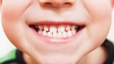 Photo of مين جربت تبييض الأسنان في عيادة الطبيب