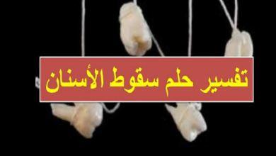 Photo of تفسير حلم تساقط الأسنان
