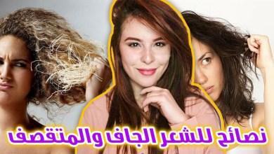 Photo of نصائح للشعر الجاف وحمايته من التساقط والتلف المزعج