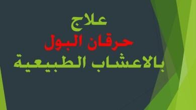 Photo of حرقان البول اسبابه و طرق علاجه بالاعشاب