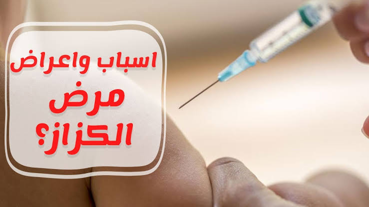Photo of ما هو مرض الكزاز