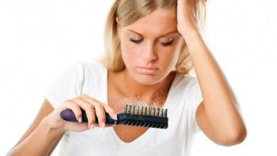 Photo of أفضل طرق لعلاج تساقط الشعر بالثوم