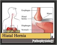 Hiatal Hernia Pathophysiology