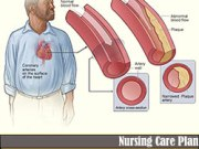 Nursing Care Plan for Coronary Artery Disease