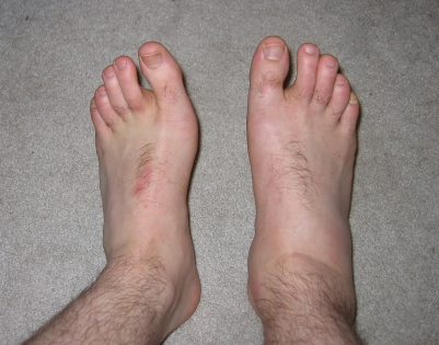 Swollen right ankle