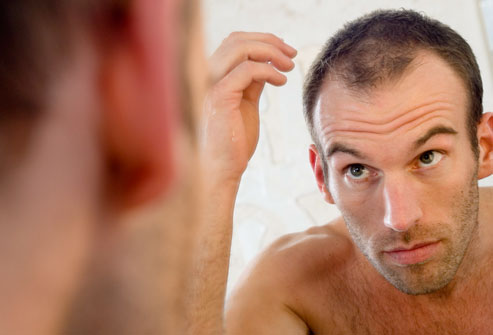 hair loss condition