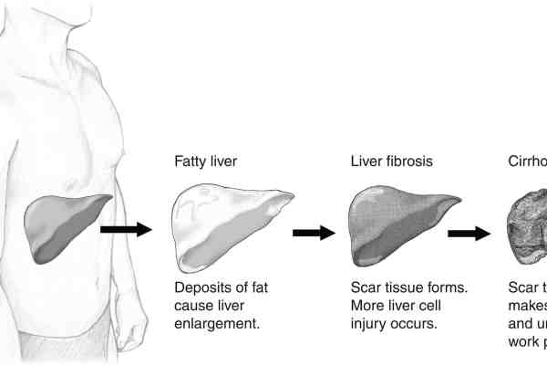 Non Alcoholic Fatty Liver IN HINDI