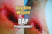 Dog Bite Wound Or DAP Propaganda?