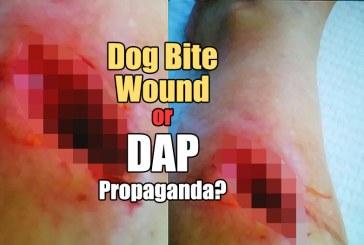Dog Bite Wound Or DAP Propaganda?
