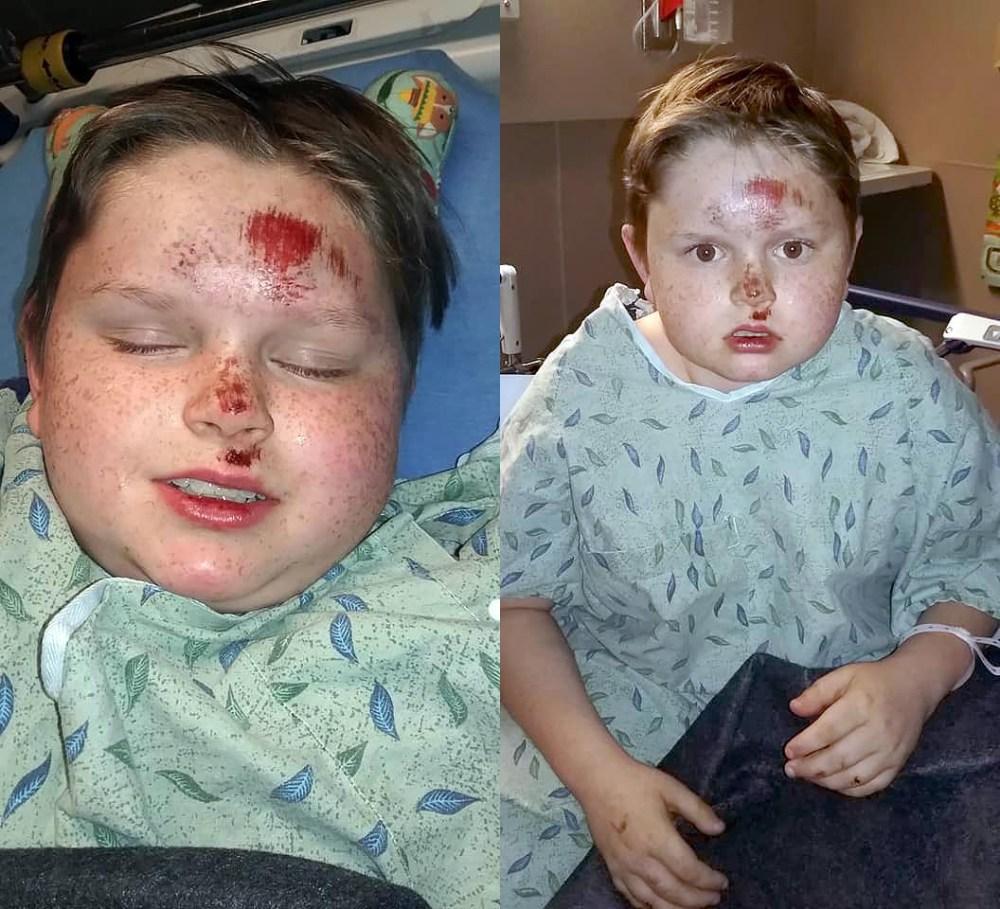 Skull breaker challenge injury - Valerie Hodson's son