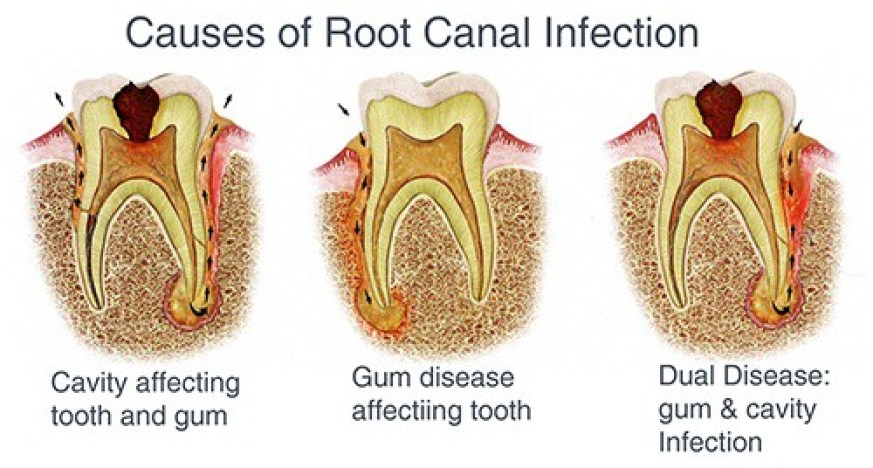 Tooth  cross section, showing how root canals relieve toothaches