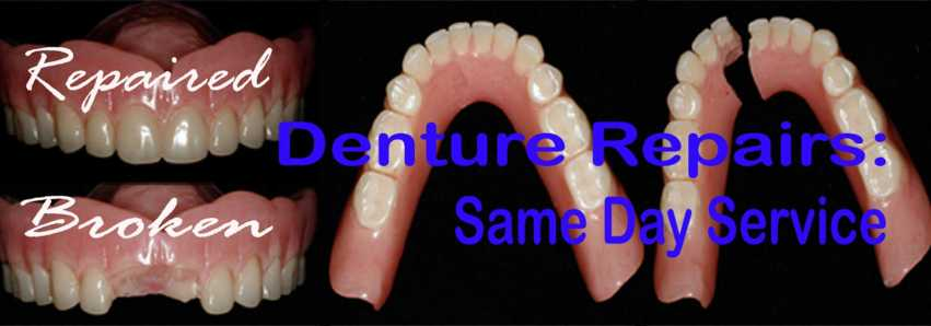 Repaired broken dentures: before and after images