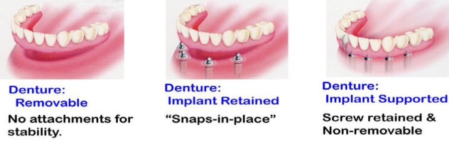 implant denture anchorage systems illustrated