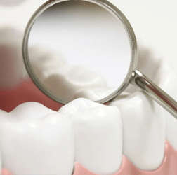 Gum Disease Dangers