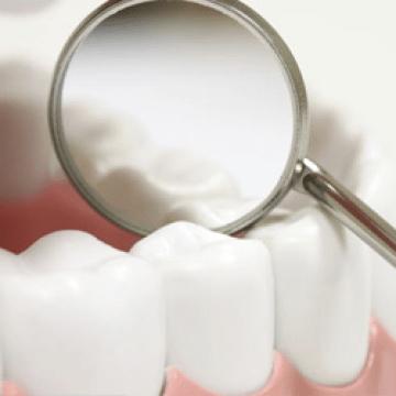 Gum Disease Dangers