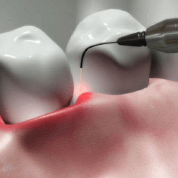 How Laser Surgery Works