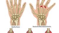 Photo of Artritis /reuma kenőcs