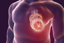 Photo of Hogyan segíts magadon, szívinfarktus esetén/info mentősöktől