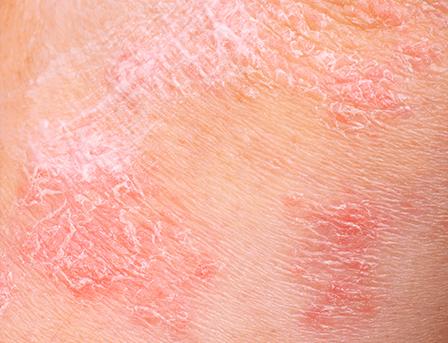 Comment limiter les irritations de la peau ?