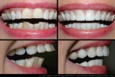 tooth reparation