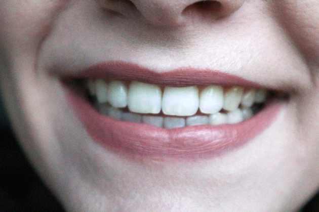 AP24 whitening tandpasta