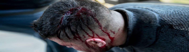 4 φοιτητές μέλη της ΚΝΕ στο νοσοκομείο από απρόκλητη επίθεση των ΜΑΤ