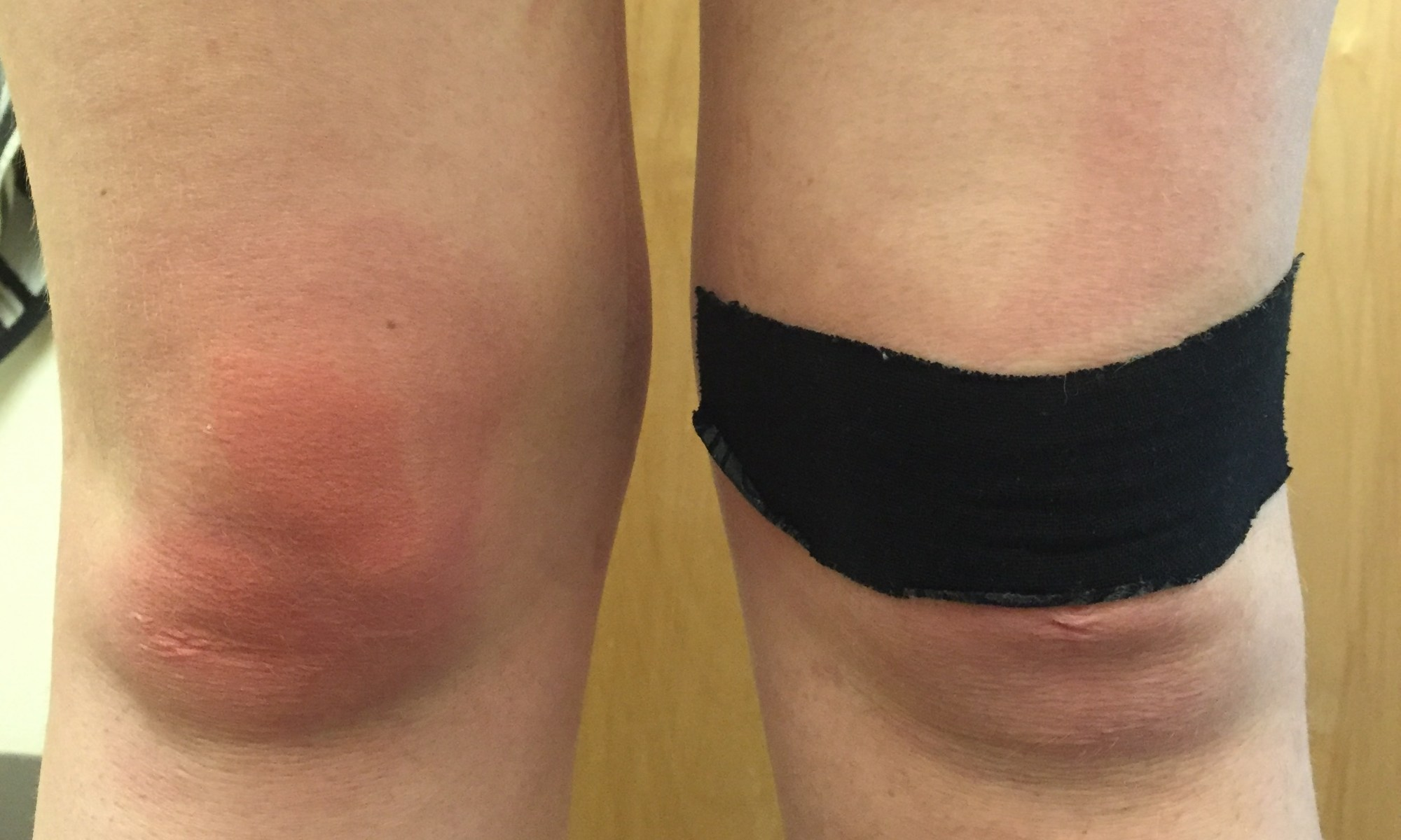 An image of Rowan Walrath's knees, the left one with a strip of black kinesiology tape on it.