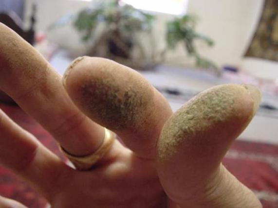 O segredo é raspar a resina que fica nos dedos usando uma espátula