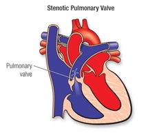 Stenose van die pulmonale klep