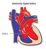 VSD: 'n opening tussen die twee ventrikels.