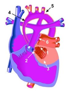 Amy is met hipoplastiese linkerventrikel gebore. Dit beteken haar linkerventrikel (1) was baie klein al was die spierwand (3) baie dik. Die stygende deel van die aorta (4) was baie onderontwikkeld. Omdat die linkerventrikel nie ontwikkel nie, ontwikkel die mitrale klep (2) tussen die linkeratrium en linkerventrikel ook nie. In baie gevalle bly die fetale opening (5) tussen die aorta en longslagaar oop, en is die aorta ook by dié plek vernou (dit is bekend as koarktasie van die aorta.)