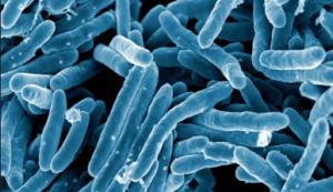 Die TB bakterieë gesien met 'n elektronmikroskoop